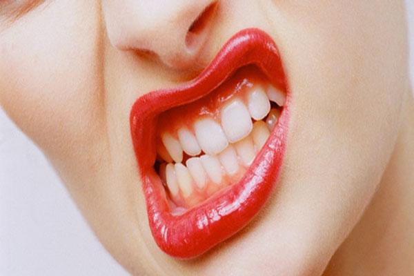 Diş Gıcırdatmak